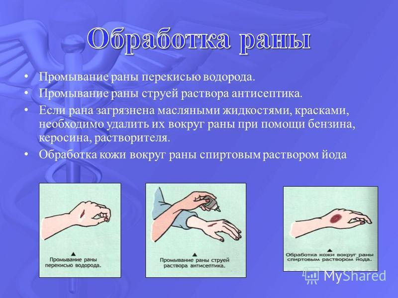 Промывание раны перекисью водорода. Промывание раны струей раствора антисептика. Если рана загрязнена масляными жидкостями, красками, необходимо удалить их вокруг раны при помощи бензина, керосина, растворителя. Обработка кожи вокруг раны спиртовым р