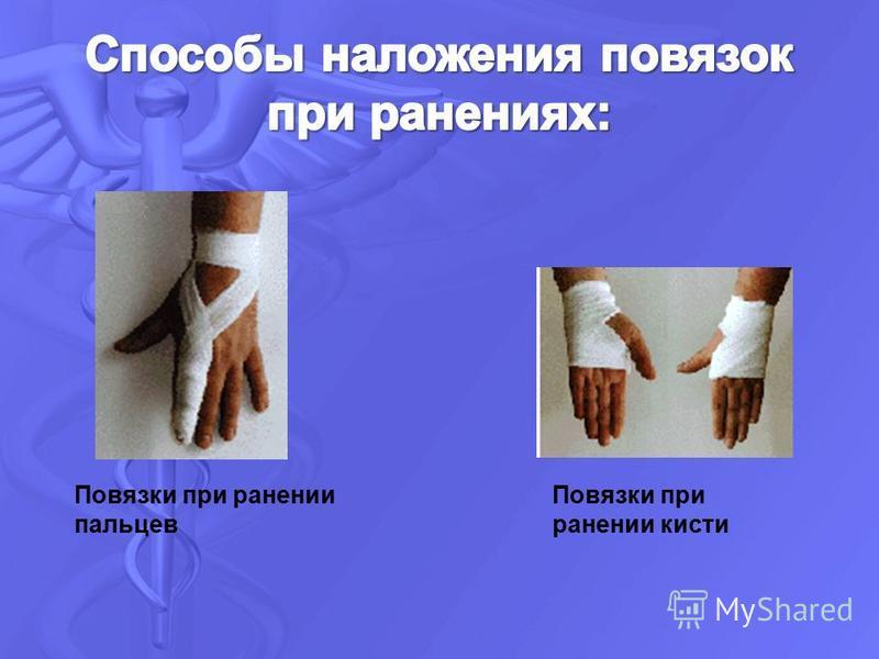 Повязки при ранении пальцев Повязки при ранении кисти