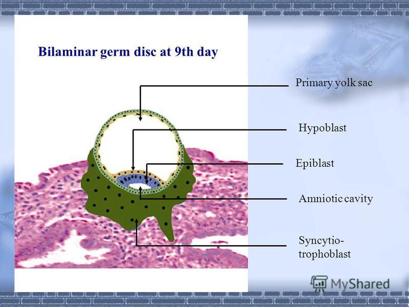 2. Amnion 8th day epiblast amnioblast aminiotic membrane amniotic cavity amniotic fluid 3.Primary yolk sac 9th day hypoblast extraembyronic endoderm primary yolk sac
