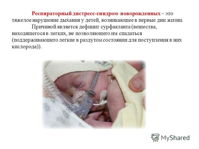 Респираторный дистресс-синдром новорожденных – это тяжелое нарушение дыхания у детей, возникающее в первые дни жизни. Причиной является дефицит сурфактанта (вещества, находящегося в легких, не позволяющего им спадаться (поддерживающего легкие в разду