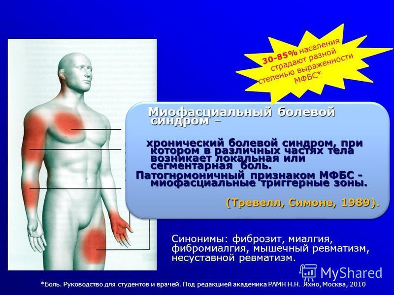 Ревматизм Мышечный
