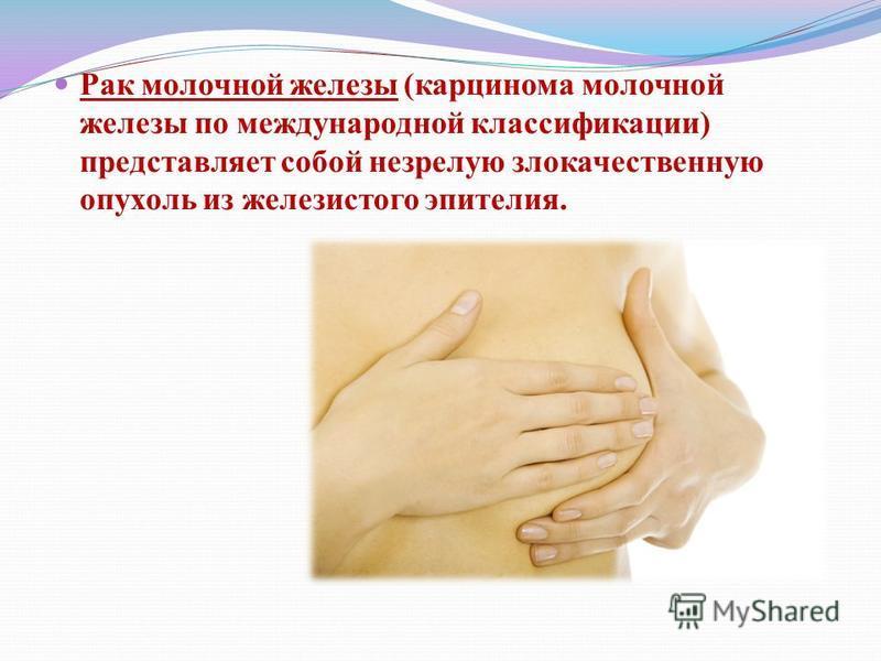Рак молочной железы (карцинома молочной железы по международной классификации) представляет собой незрелую злокачественную опухоль из железистого эпителия.