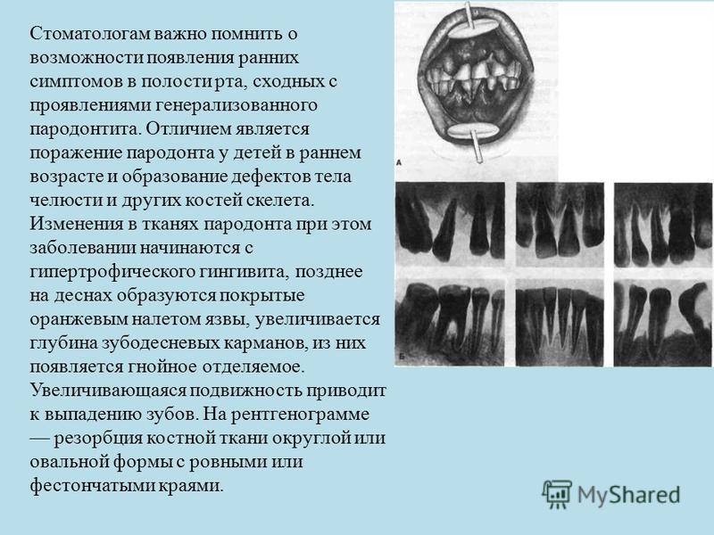 Стоматологам важно помнить о возможности появления ранних симптомов в полости рта, сходных с проявлениями генерализованного пародонтита. Отличием является поражение пародонта у детей в раннем возрасте и образование дефектов тела челюсти и других кост