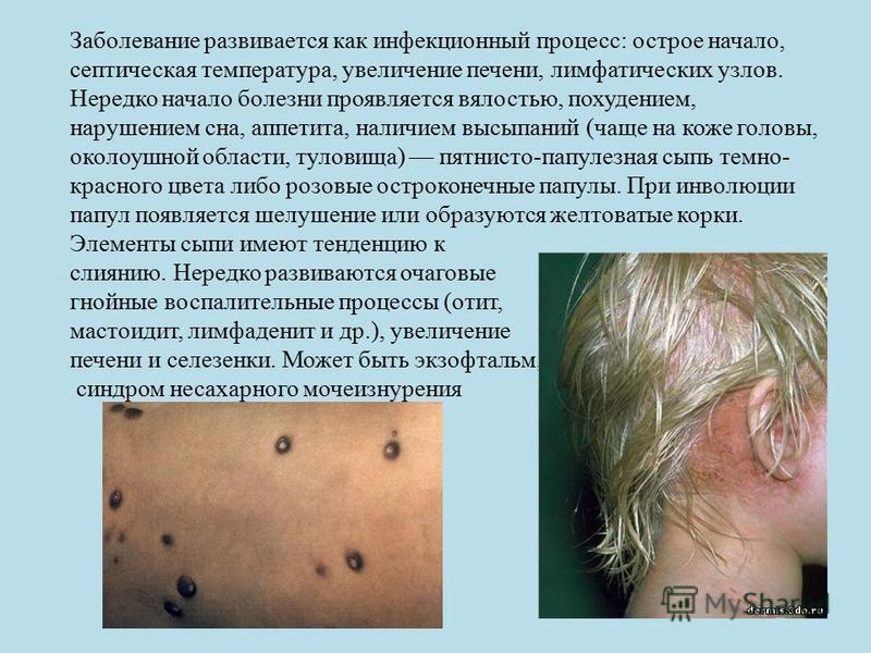 Заболевание развивается как инфекционный процесс: острое начало, септическая температура, увеличение печени, лимфатических узлов. Нередко начало болезни проявляется вялостью, похудением, нарушением сна, аппетита, наличием высыпаний (чаще на коже голо