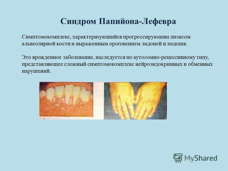 Синдром Папийона-Лефевра Симптомокомплекс, характеризующийся прогрессирующим лизисом альвеолярной кости и выраженным ороговением ладоней и подошв. Это врожденное заболевание, наследуется по аутосомно-рецессивному типу, представляющее сложный симптомо