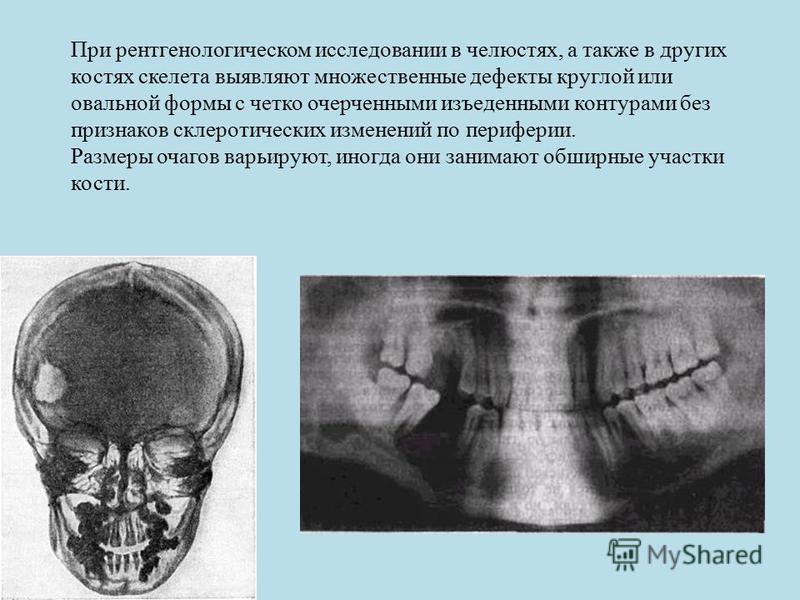 При рентгенологическом исследовании в челюстях, а также в других костях скелета выявляют множественные дефекты круглой или овальной формы с четко очерченными изъеденными контурами без признаков склеротических изменений по периферии. Размеры очагов ва