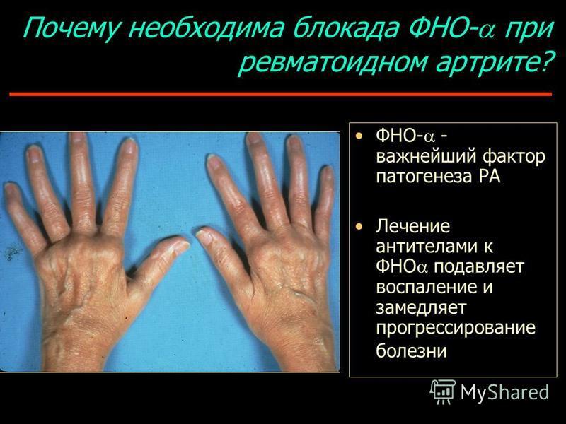Почему необходима блокада ФНО- при ревматоидном артрите? ФНО- - важнейший фактор патогенеза РА Лечение антителами к ФНО подавляет воспаление и замедляет прогрессирование болезни