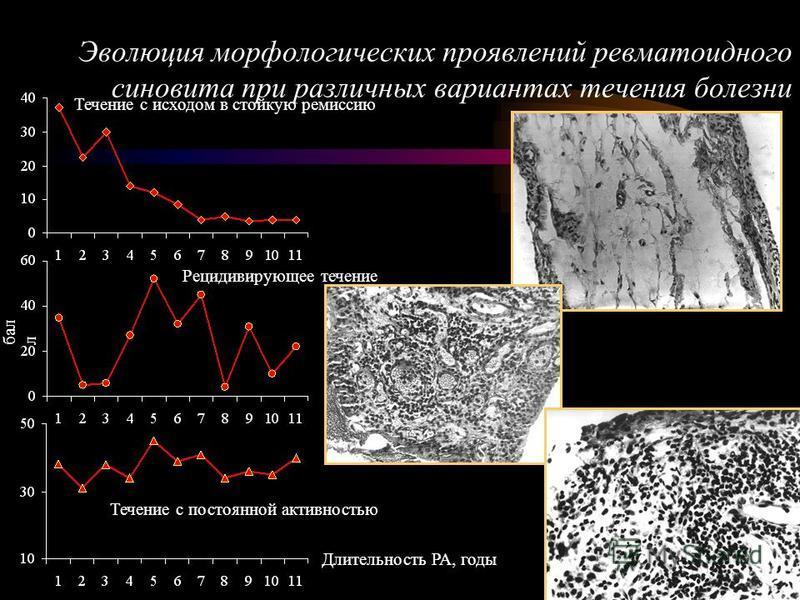 Эволюция морфологических проявлений ревматоидного синавита при различных вариантах течения болезни Течение с исходом в стойкую ремиссию Рецидивирующее течение Течение с постоянной активностью Длительность РА, годы бал л