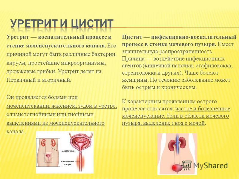 Уретрит воспалительный процесс в стенке мочеиспускательного канала. Его причиной могут быть различные бактерии, вирусы, простейшие микроорганизмы, дрожжевые грибки. Уретрит делят на Первичный и вторичный. Он проявляется болями при мочеиспускании, жже