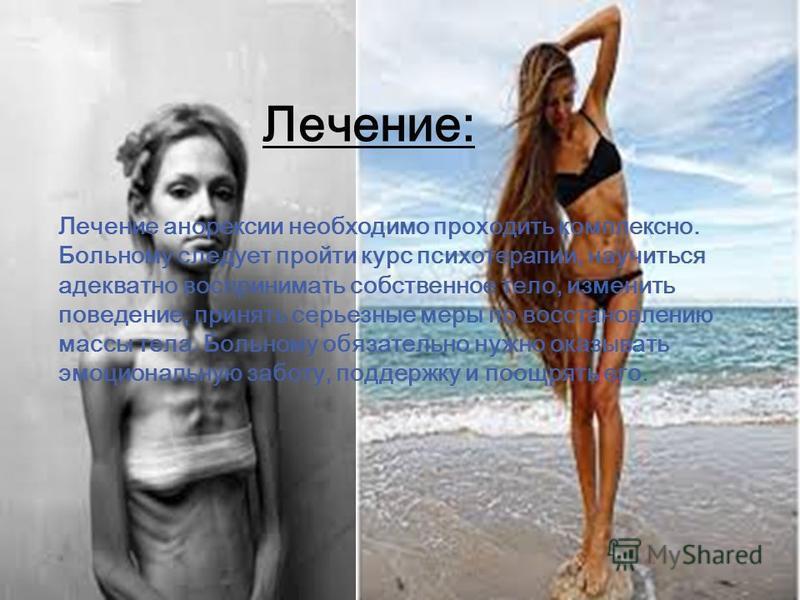 Лечение: Лечение анорексии необходимо проходить комплексно. Больному следует пройти курс психотерапии, научиться адекватно воспринимать собственное тело, изменить поведение, принять серьезные меры по восстановлению массы тела. Больному обязательно ну