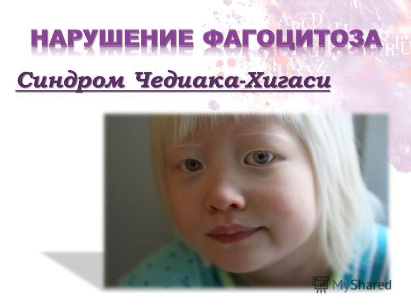 Синдром Чедиака-Хигаси