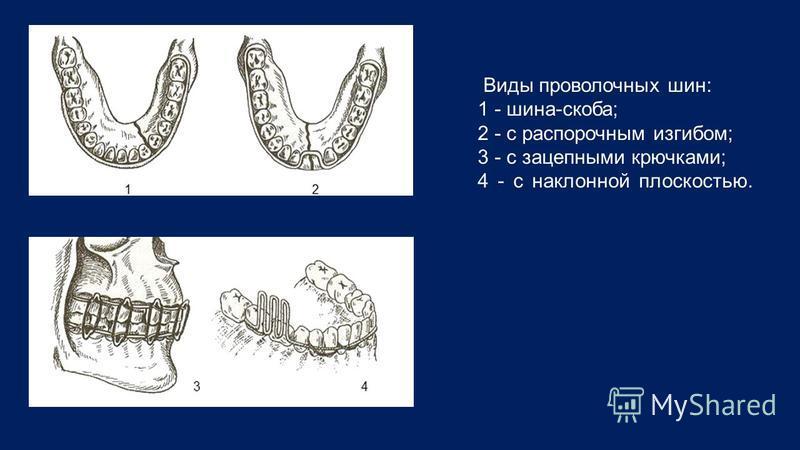 Виды проволочных шин: 1 - шина-скоба; 2 - с распорочным изгибом; 3 - с зацепными крючками; 4 - с наклонной плоскостью.