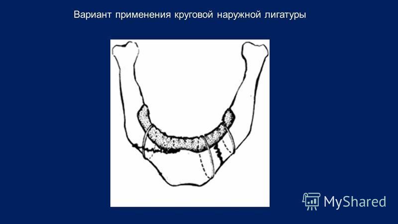 Вариант применения круговой наружной лигатуры