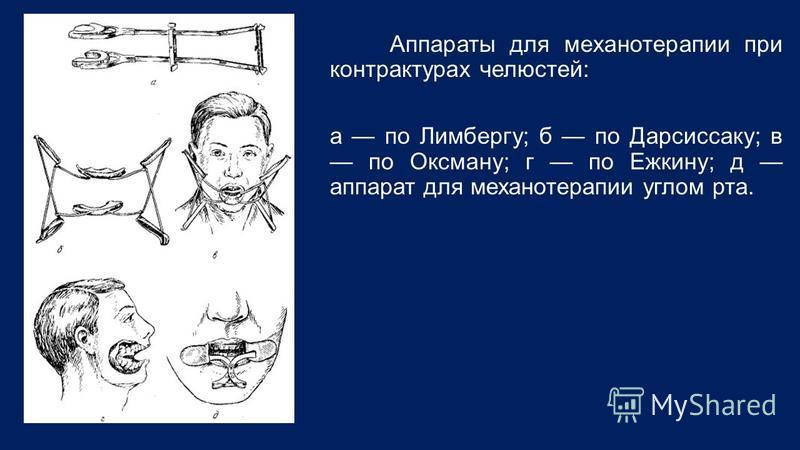 Аппараты для механотерапии при контрактурах челюстей: а по Лимбергу; б по Дарсиссаку; в по Оксману; г по Ежкину; д аппарат для механотерапии углом рта.