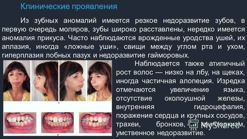 Клинические проявления Из зубных аномалий имеется резкое недоразвитие зубов, в первую очередь моляров, зубы широко расставлены, нередко имеется аномалия прикуса. Часто наблюдаются врожденные уродства ушей, их аплазия, иногда «ложные уши», свищи между