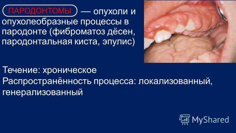 опухоли и опухоль образные процессы в пародонте (фиброматоз дёсен, пародонтальная киста, эпулис) Течение: хроническое Распространённость процесса: локализованный, генерализованный ПАРОДОНТОМЫ