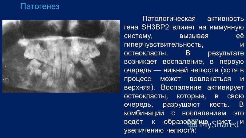 Патогенез Патологическая активность гена SH3BP2 влияет на иммунную систему, вызывая её гиперчувствительность, и остеокласты. В результате возникает воспаление, в первую очередь нижней челюсти (хотя в процесс может вовлекаться и верхняя). Воспаление а