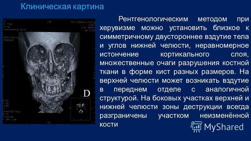 Клиническая картина Рентгенологическим методом при херувизме можно установить близкое к симметричному двустороннее вздутие тела и углов нижней челюсти, неравномерное истончение кортикального слоя, множественные очаги разрушения костной ткани в форме