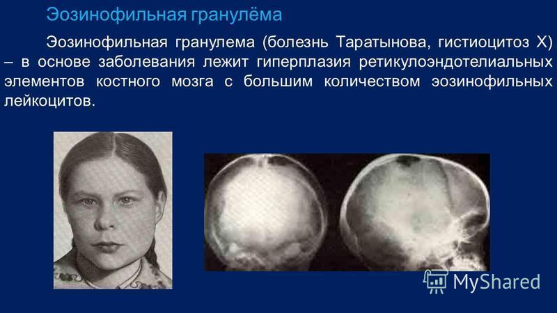 Эозинофильная гранулёма Эозинофильная гранулема (болезнь Таратынова, гистиоцитоз Х) – в основе заболевания лежит гиперплазия ретикулоэндотелиальных элементов костного мозга с большим количеством эозинофильных лейкоцитов.