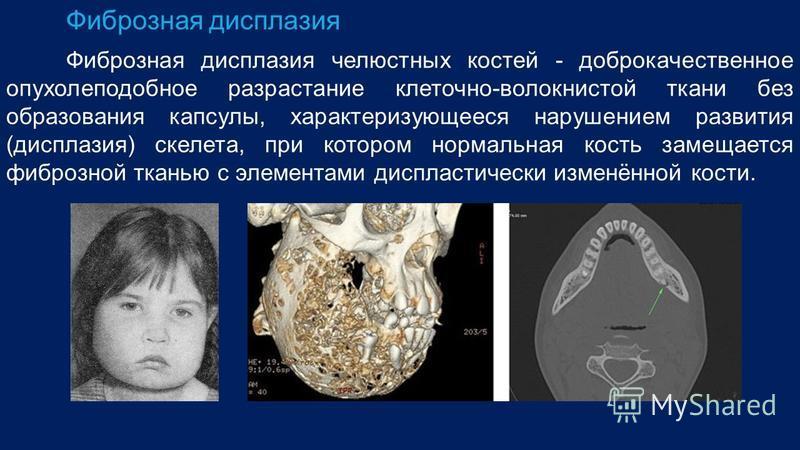 Фиброзная дисплазия Фиброзная дисплазия челюстных костей - доброкачественное опухолеподобное разрастание клеточно-волокнистой ткани без образования капсулы, характеризующееся нарушением развития (дисплазия) скелета, при котором нормальная кость заме