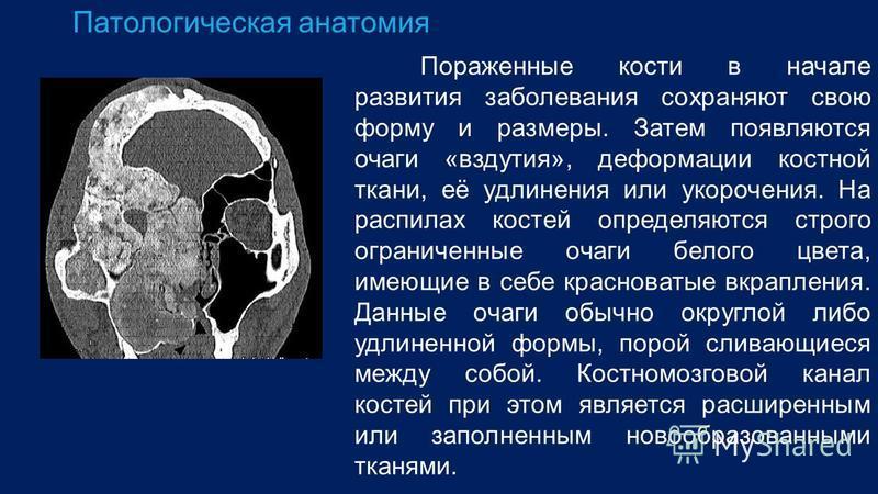 Патологическая анатомия Пораженные кости в начале развития заболевания сохраняют свою форму и размеры. Затем появляются очаги «вздутия», деформации костной ткани, её удлинения или укорочения. На распилах костей определяются строго ограниченные очаги