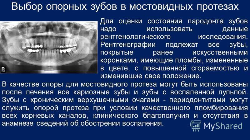Выбор опорных зубов в мостовидных протезах Для оценки состояния пародонта зубов надо использовать данные рентгенологического исследования. Рентгенографии подлежат все зубы, покрытые ранее искусственными коронками, имеющие пломбы, измененные в цвете,