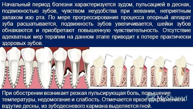 Начальный период болезни характеризуется зудом, пульсацией в деснах, подвижностью зубов, чувством неудобства при жевании, неприятным запахом изо рта. По мере прогрессирования процесса опорный аппарат зуба расшатывается, подвижность зубов увеличиваетс