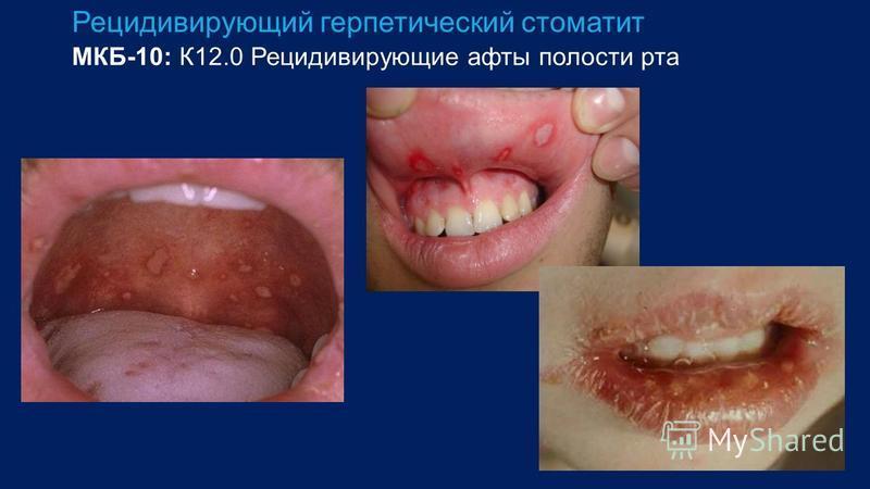 Рецидивирующий герпетический стоматит МКБ-10: К12.0 Рецидивирующие афты полости рта