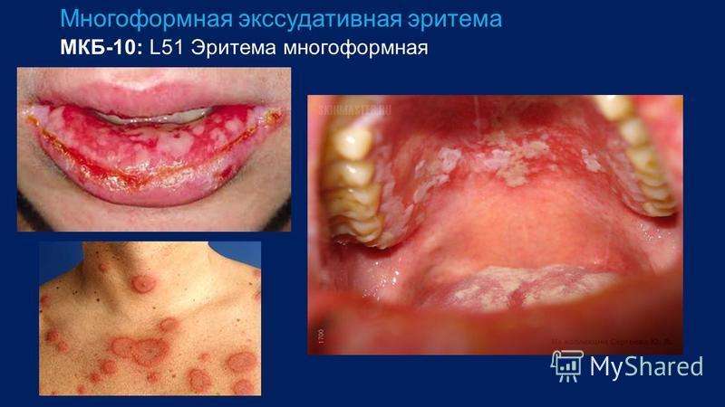 Многоформная экссудативная эритема МКБ-10: L51 Эритема многоформная