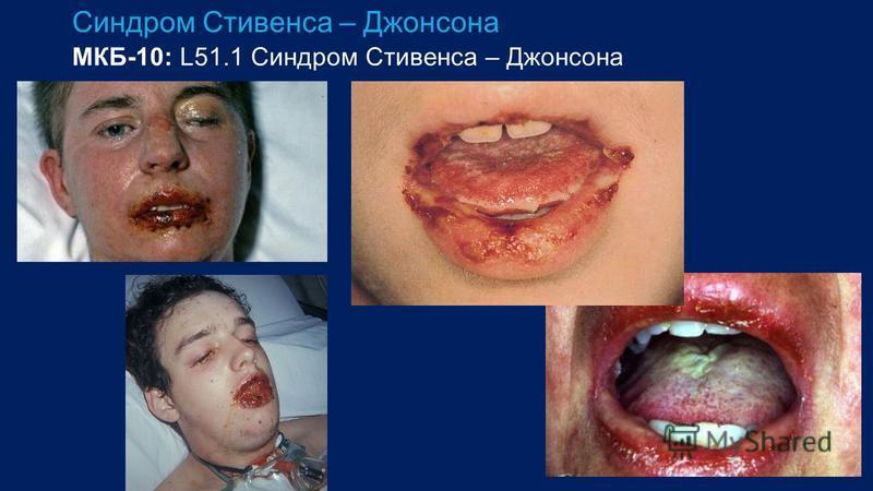 Синдром Стивенса – Джонсона МКБ-10: L51.1 Синдром Стивенса – Джонсона