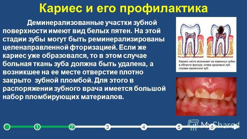 Кариес и его профилактика Деминерализованные участки зубной поверхности имеют вид белых пятен. На этой стадии зубы могут быть реминерализированы целенаправленной фторизацией. Если же кариес уже образовался, то в этом случае больная ткань зуба должна