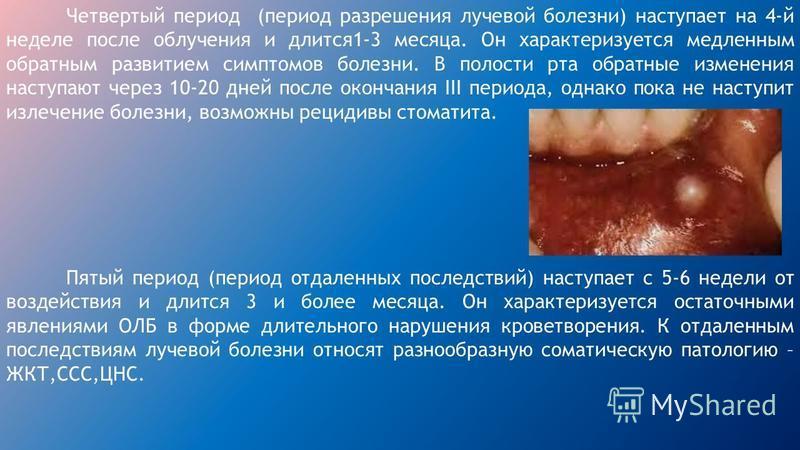 Стоматология заболевания слизистой оболочки полости рта