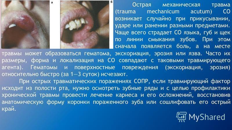 Острая механическая травма (trauma mechanicum acutum) CO возникает случайно при прикусывании, ударе или ранении разными предметами. Чаще всего страдает СО языка, губ и щек по линии смыкания зубов. При этом сначала появляется боль, а на месте травмы м