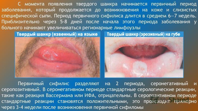 С момента появления твердого шанкра начинается первичный период заболевания, который продолжается до возникновения на коже и слизистых специфической сыпи. Период первичного сифилиса длится в среднем 67 недель. Приблизительно через 5-8 дней после нача
