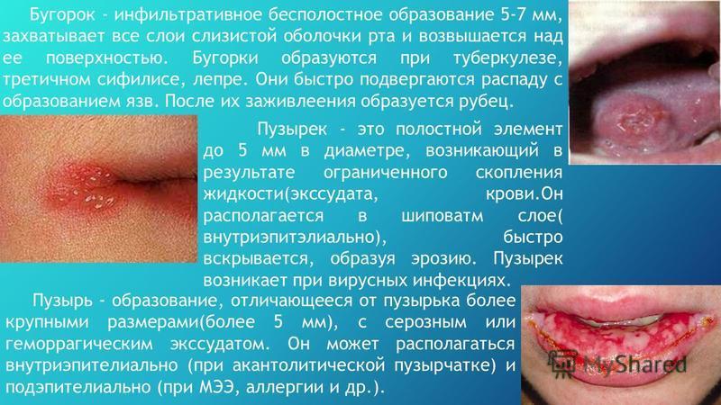 Бугорок - инфильтративное бесполостное образование 5-7 мм, захватывает все слои слизистой оболочки рта и возвышается над ее поверхностью. Бугорки образуются при туберкулезе, третичном сифилисе, лепре. Они быстро подвергаются распаду с образованием яз