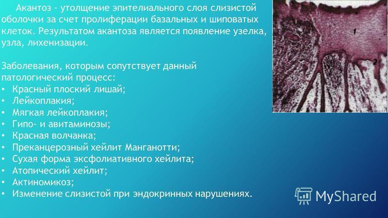Акантоз - утолщение эпителиального слоя слизистой оболочки за счет пролиферации базальных и шиповатых клеток. Результатом акантоза является появление узелка, узла, лихенизации. Заболевания, которым сопутствует данный патологический процесс: Красный п