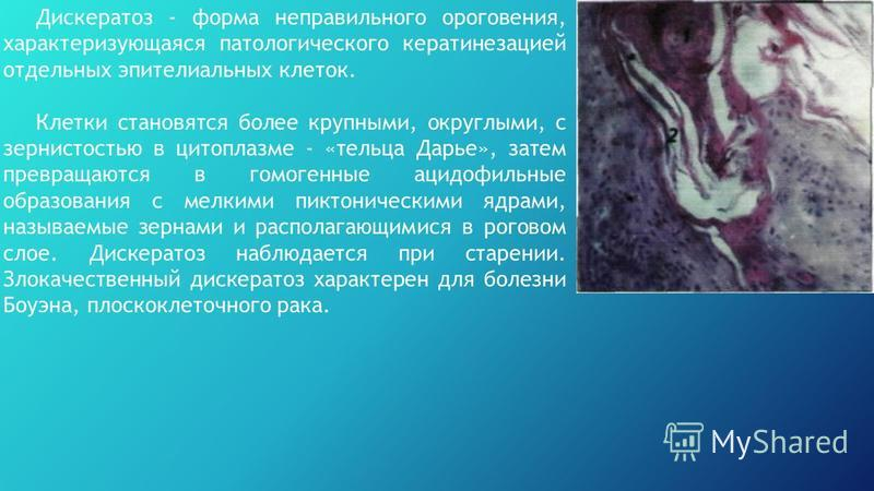 Дискератоз - форма неправильного ороговения, характеризующаяся патологического кератинезацией отдельных эпителиальных клеток. Клетки становятся более крупными, округлыми, с зернистостью в цитоплазме - «тельца Дарье», затем превращаются в гомогенные а