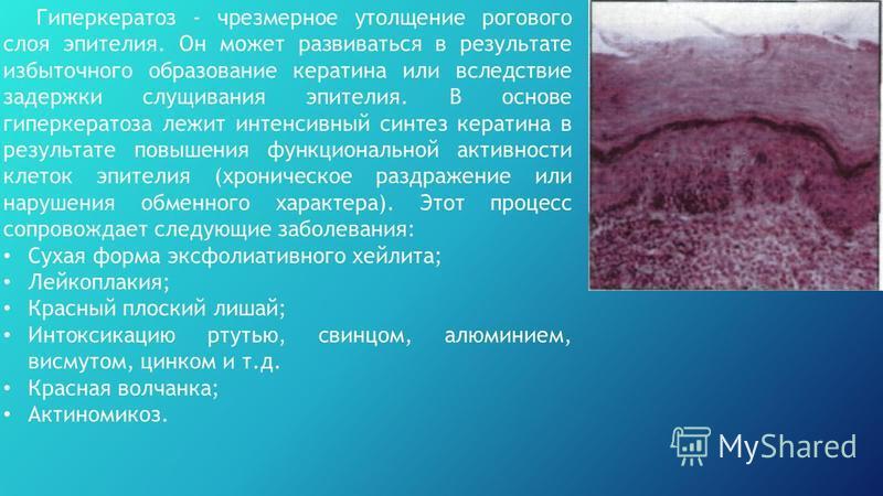 Гиперкератоз - чрезмерное утолщение рогового слоя эпителия. Он может развиваться в результате избыточного образование кератина или вследствие задержки слущивания эпителия. В основе гиперкератоза лежит интенсивный синтез кератина в результате повышени