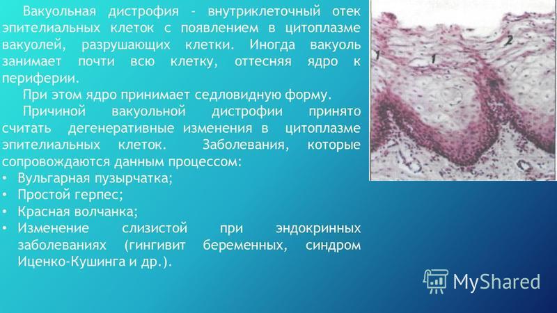 Вакуольная дострофия - внутриклеточный отек эпителиальных клеток с появлением в цитоплазме вакуолей, разрушающих клетки. Иногда вакуоль занимает почти всю клетку, оттесняя ядро к периферии. При этом ядро принимает седловидную форму. Причиной вакуольн