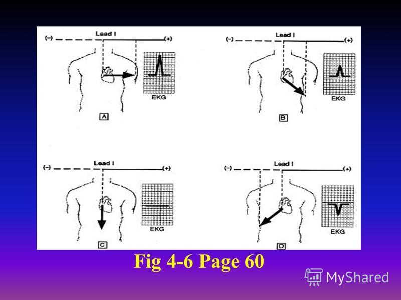 Fig 4-6 Page 60