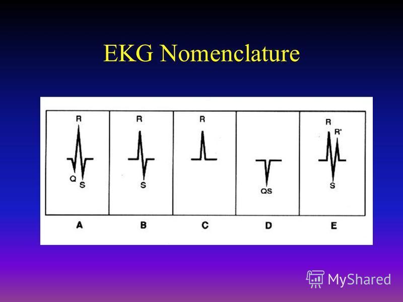 EKG Nomenclature