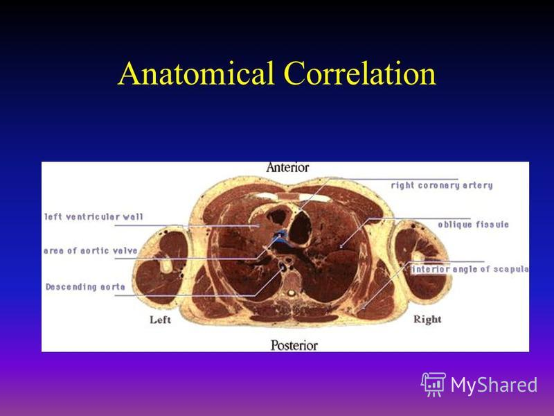 Anatomical Correlation