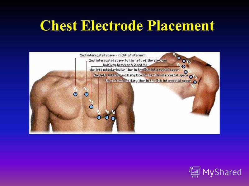Chest Electrode Placement