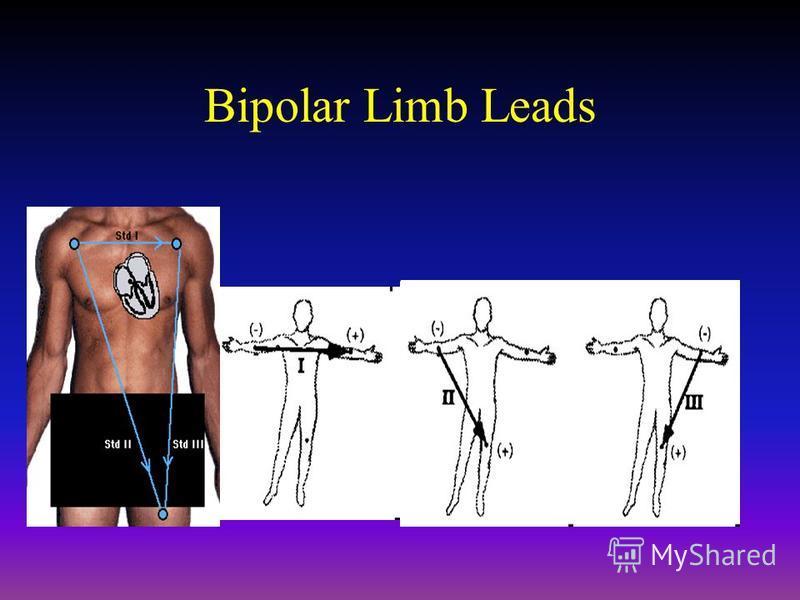 Bipolar Limb Leads