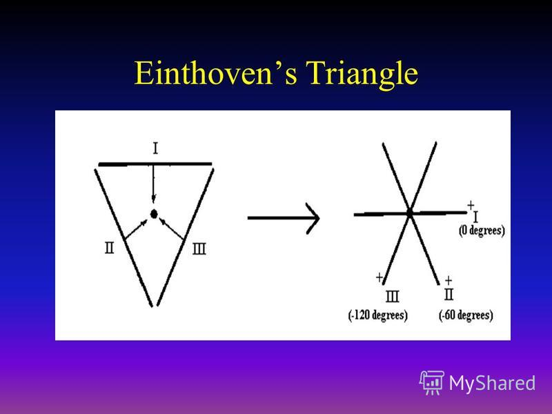 Einthovens Triangle