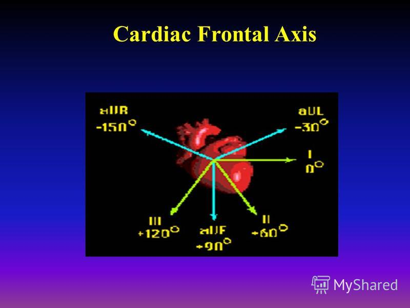 Cardiac Frontal Axis