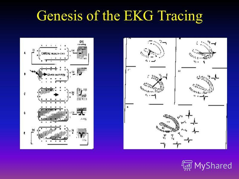 Genesis of the EKG Tracing