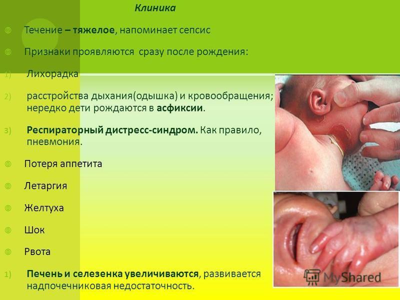Клиника Течение – тяжелое, напоминает сепсис Признаки проявляются сразу после рождения: 1) Лихорадка 2) расстройства дыхания(одышка) и кровообращения; нередко дети рождаются в асфиксии. 3) Респираторный дистресс-синдром. Как правило, пневмония. Потер