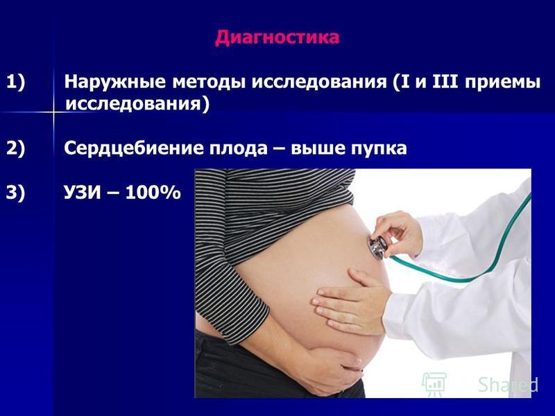 Диагностика 1) Наружные методы исследования (I и III приемы исследования) 2) Сердцебиение плода – выше пупка 3) УЗИ – 100%