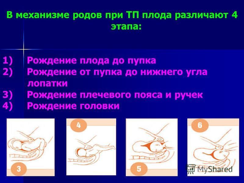 В механизме родов при ТП плода различают 4 этапа: 1) Рождение плода до пупка 2) Рождение от пупка до нижнего угла лопатки 3) Рождение плечевого пояса и ручек 4) Рождение головки